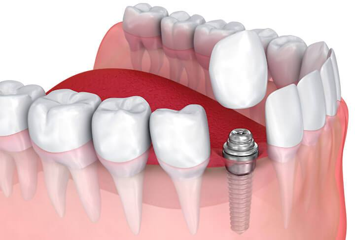 A crown on an implant